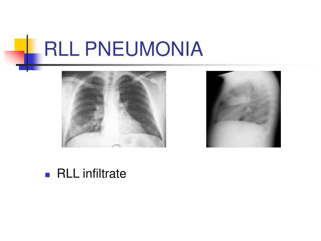 RLL PNEUMONIA