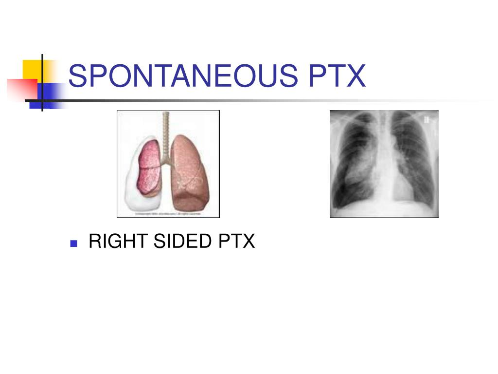 SPONTANEOUS PTX