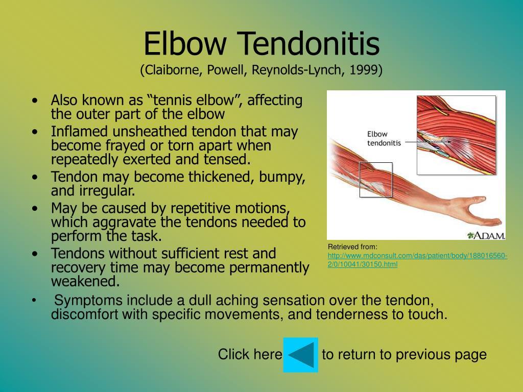Elbow Tendonitis