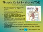 thoracic outlet syndrome tos claiborne powell reynolds lynch 1999