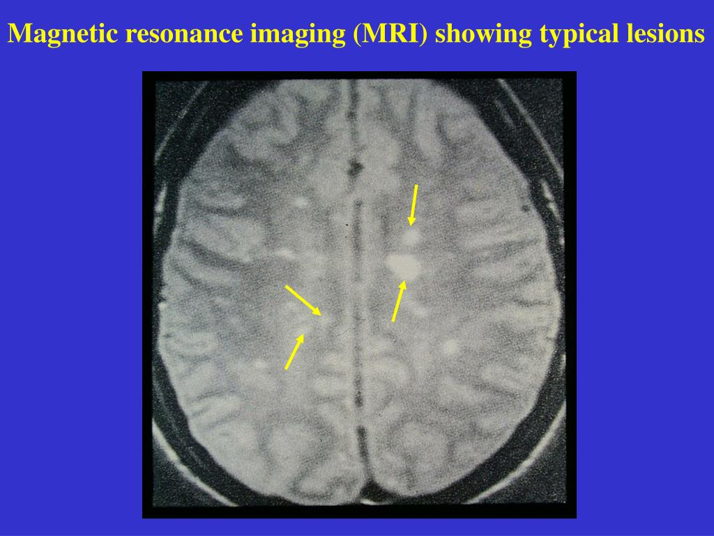 Magnetic resonance imaging (MRI) showing typical lesions