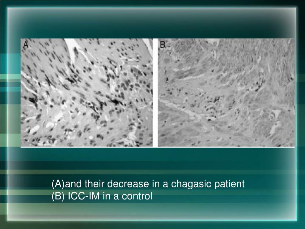 and their decrease in a chagasic patient