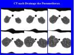 ct nach drainage des pneumothorax