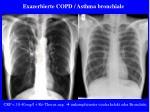 exazerbierte copd asthma bronchiale