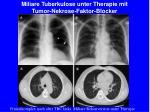 miliare tuberkulose unter therapie mit tumor nekrose faktor blocker