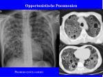 opportunistische pneumonien23