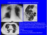 sars schweres akut respiratorisches syndrom