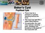 baker s cyst popliteal cyst