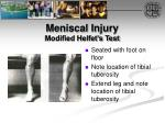 meniscal injury modified helfet s test