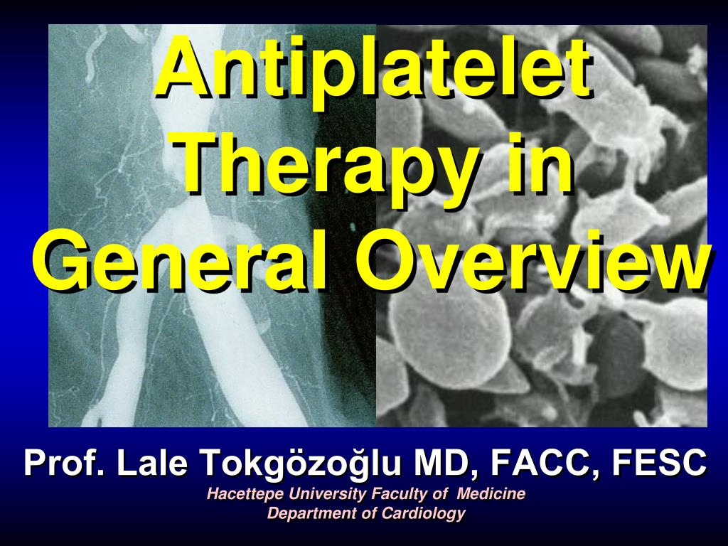 antiplatelet therapy in general overview l.