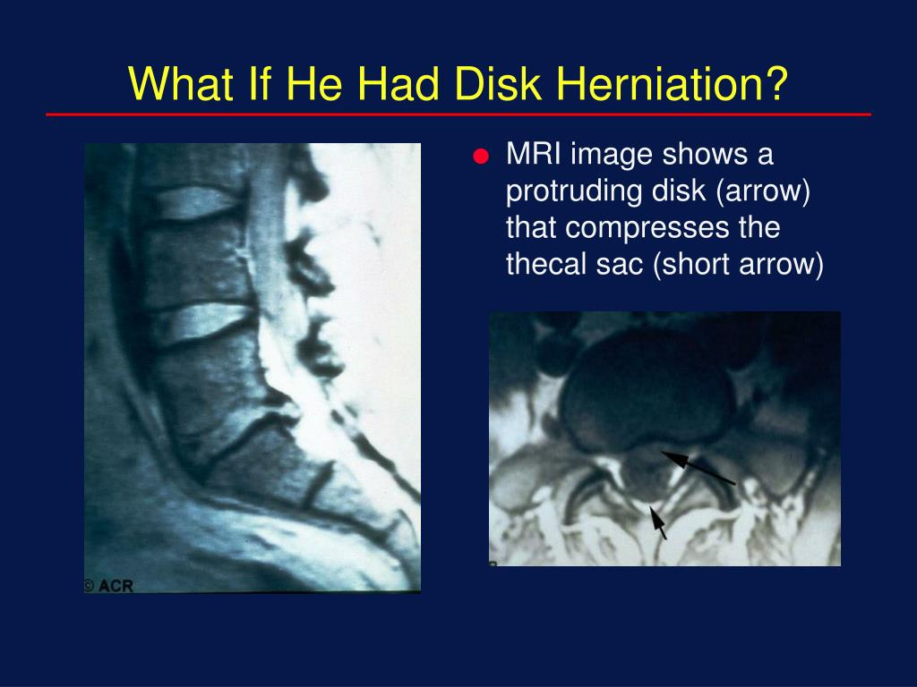 What If He Had Disk Herniation?
