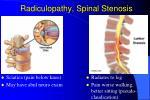 radiculopathy spinal stenosis