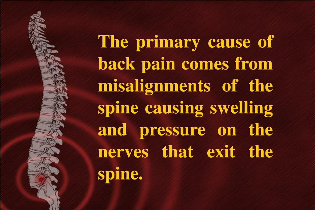 The primary cause of back pain comes from misalignments of the spine causing swelling and pressure on the nerves that exit the spine.