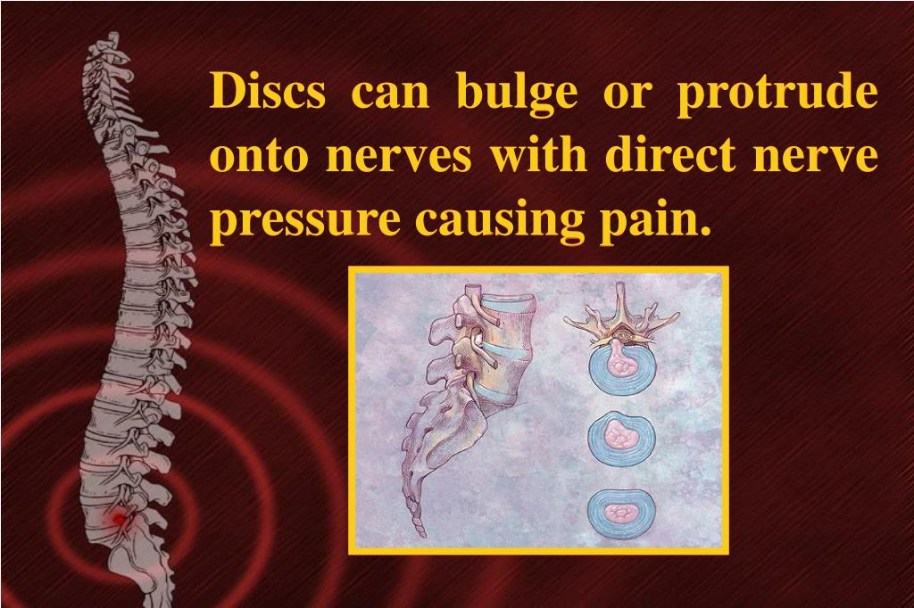 Discs can bulge or protrude onto nerves with direct nerve pressure causing pain.