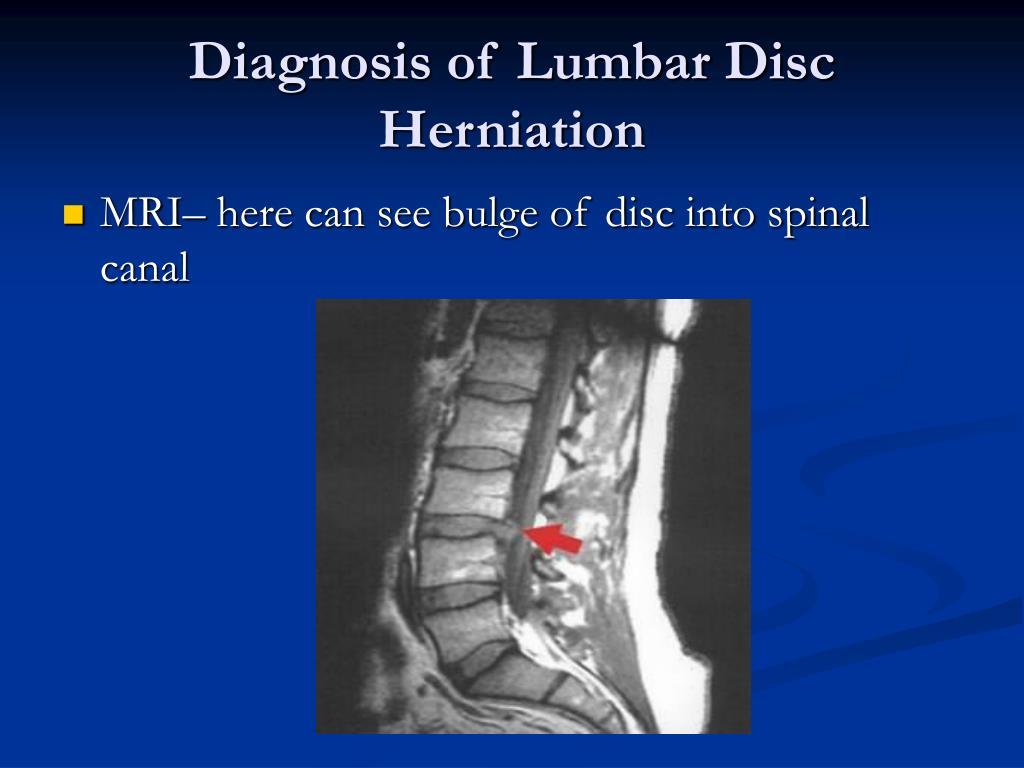 Diagnosis of Lumbar Disc Herniation