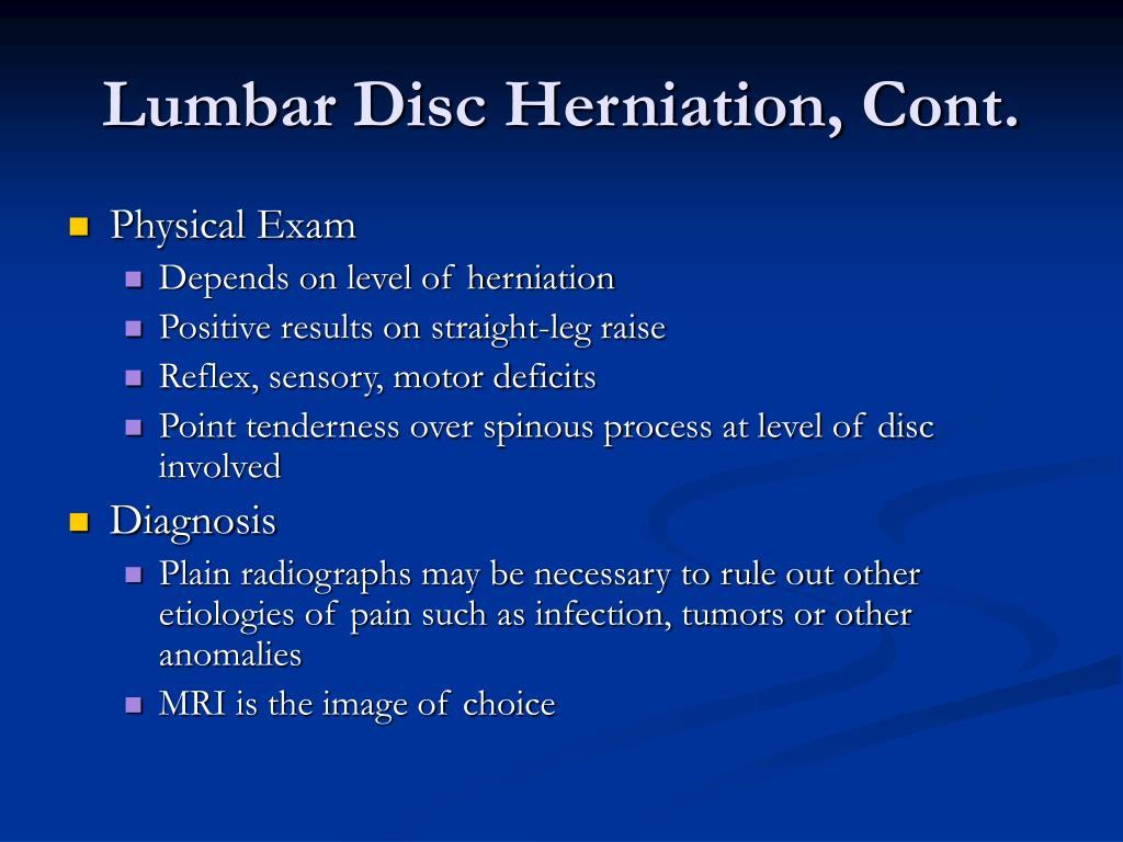 Lumbar Disc Herniation, Cont.