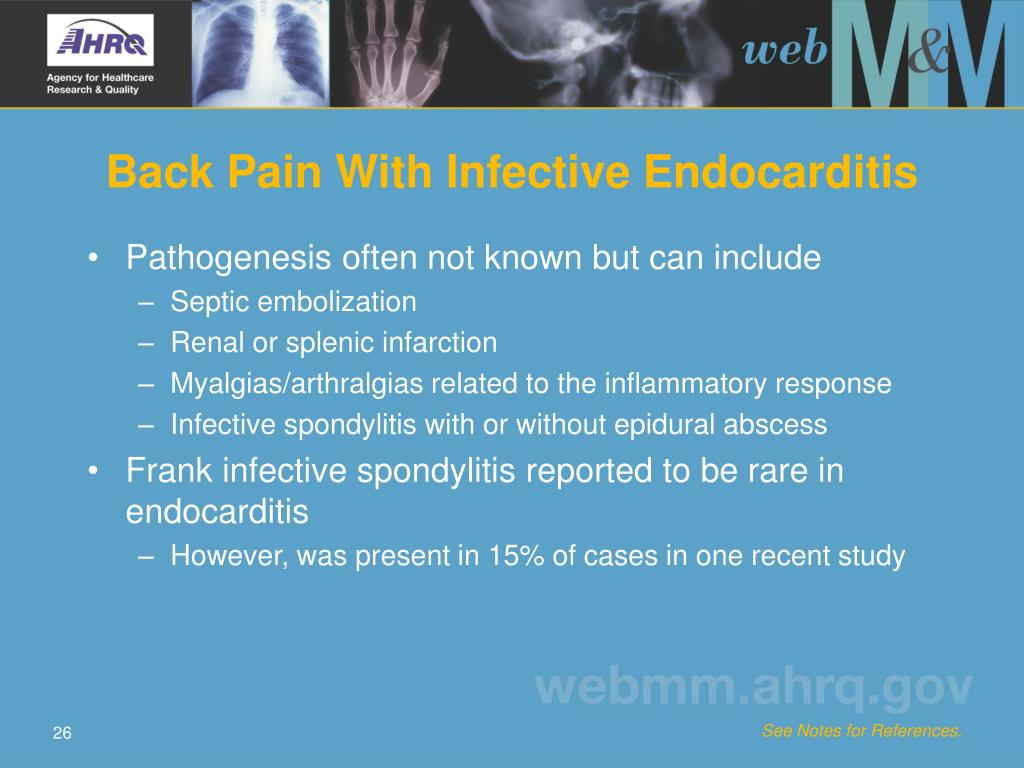 Back Pain With Infective Endocarditis