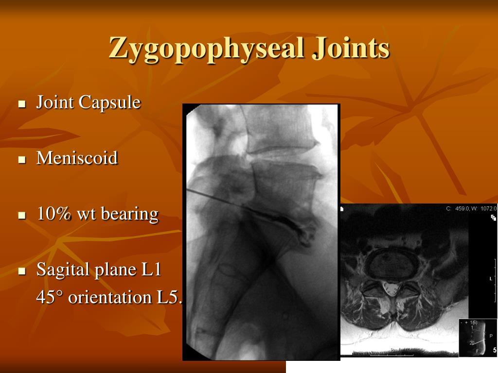 Zygopophyseal Joints