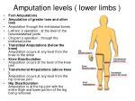 amputation levels lower limbs