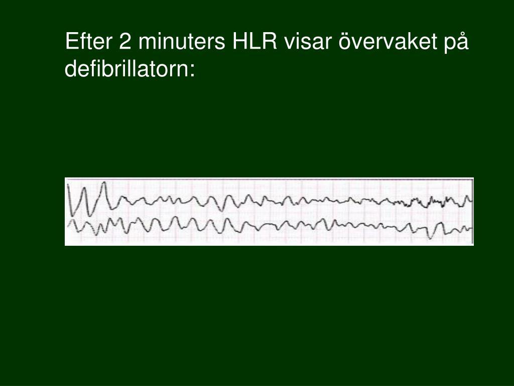 Efter 2 minuters HLR visar övervaket på defibrillatorn: