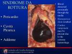 sindrome da rottura