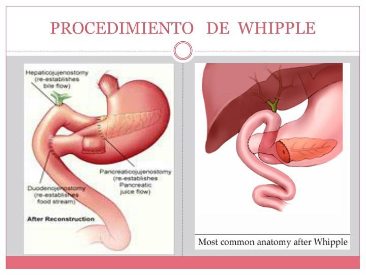 Encantador Whipple Anatomía Procedimiento Friso - Anatomía de Las ...