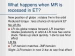 what happens when mr is recessed in et