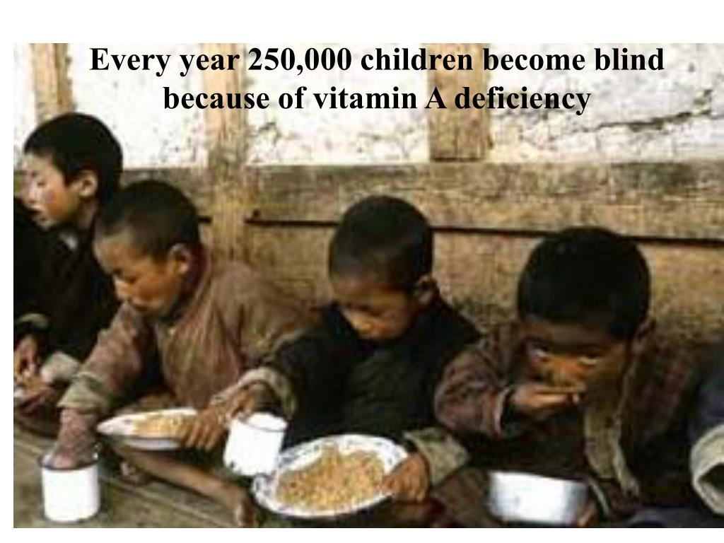 Every year 250,000 children become blind because of vitamin A deficiency