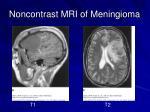 noncontrast mri of meningioma