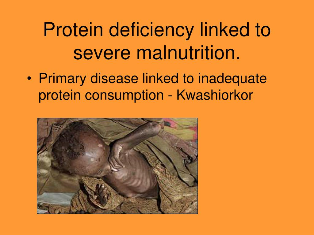 Protein deficiency linked to severe malnutrition.