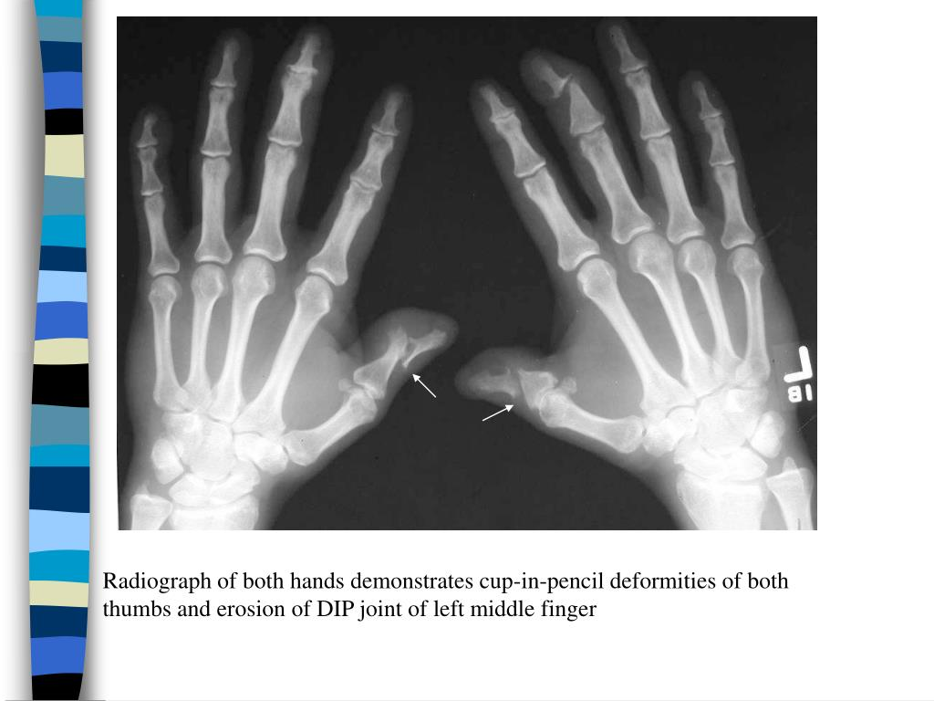 Radiograph of both hands demonstrates cup-in-pencil deformities of both thumbs and erosion of DIP joint of left middle finger