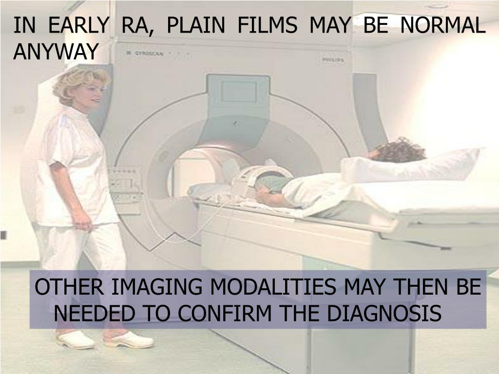 IN EARLY RA, PLAIN FILMS MAY BE NORMAL ANYWAY