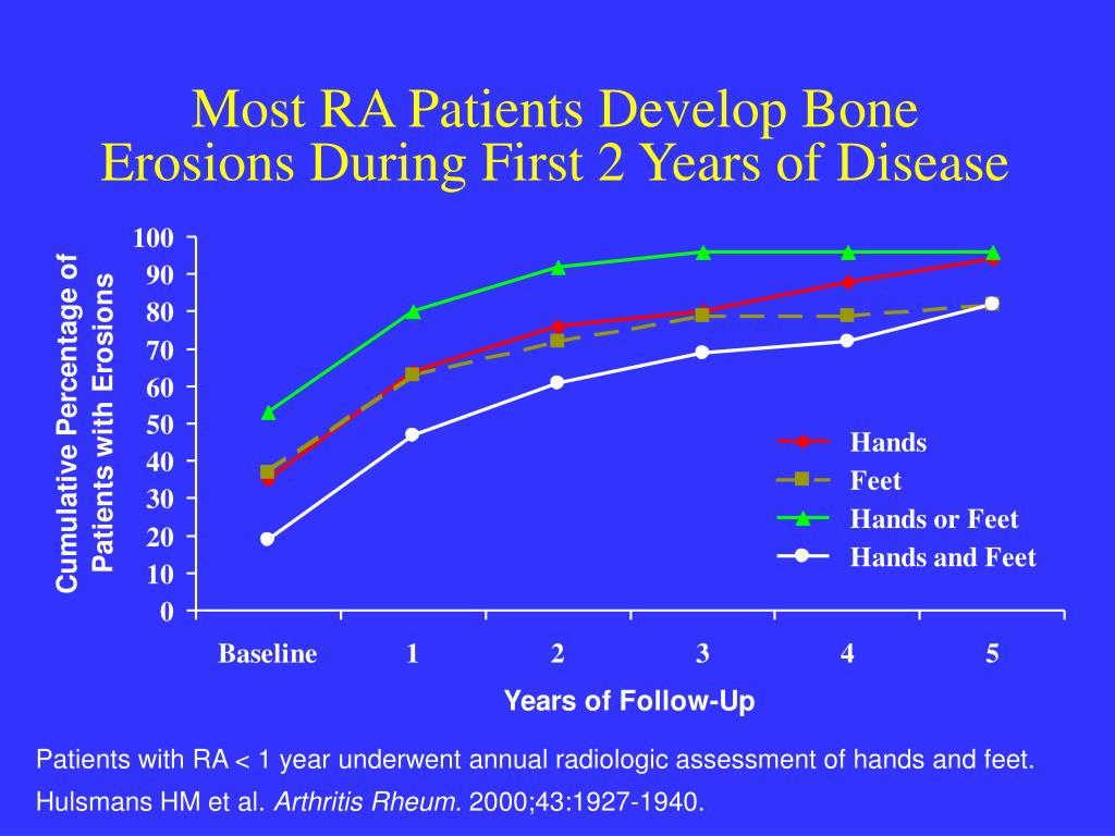Most RA Patients Develop Bone
