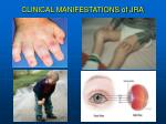 clinical manifestations of jra