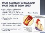 what is a heart attack and what does it look like