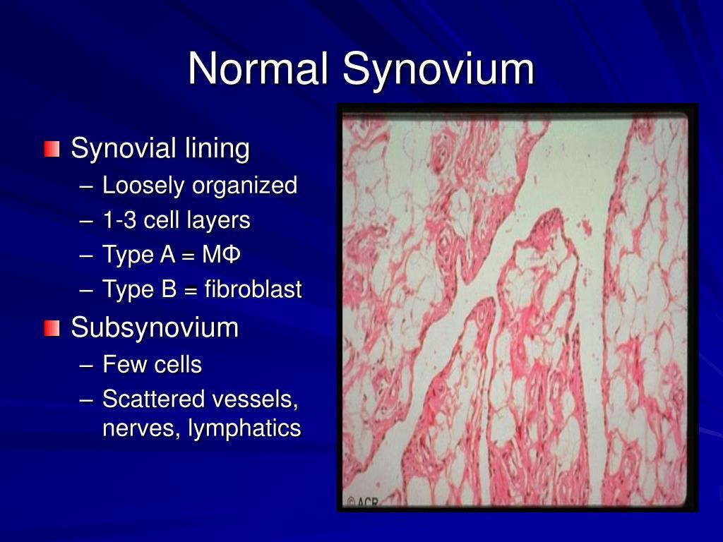 Normal Synovium