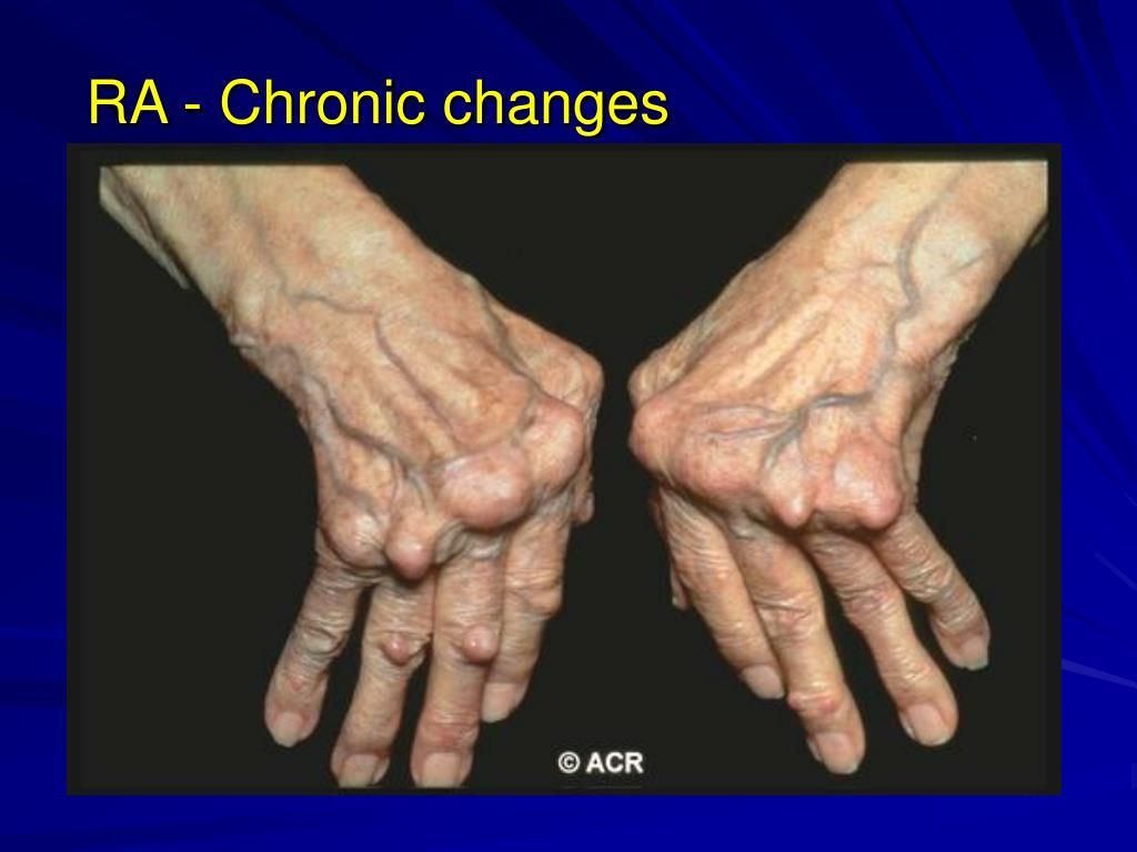 RA - Chronic changes