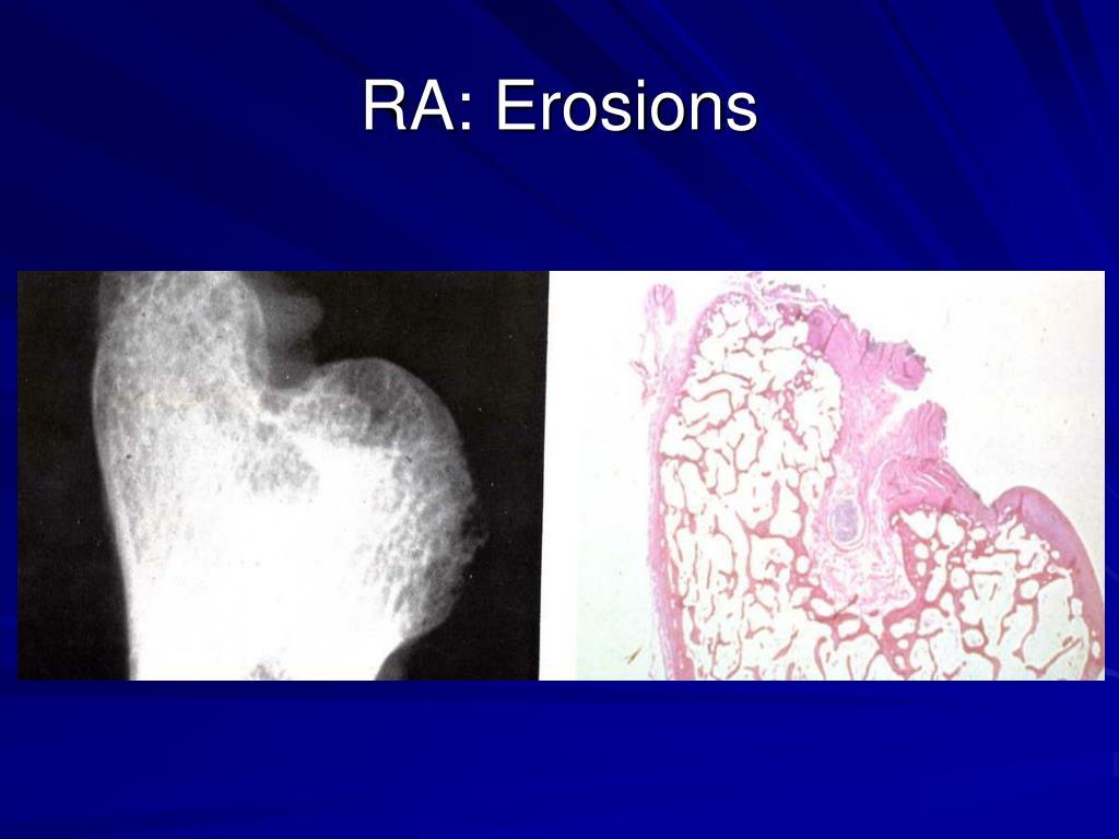 RA: Erosions