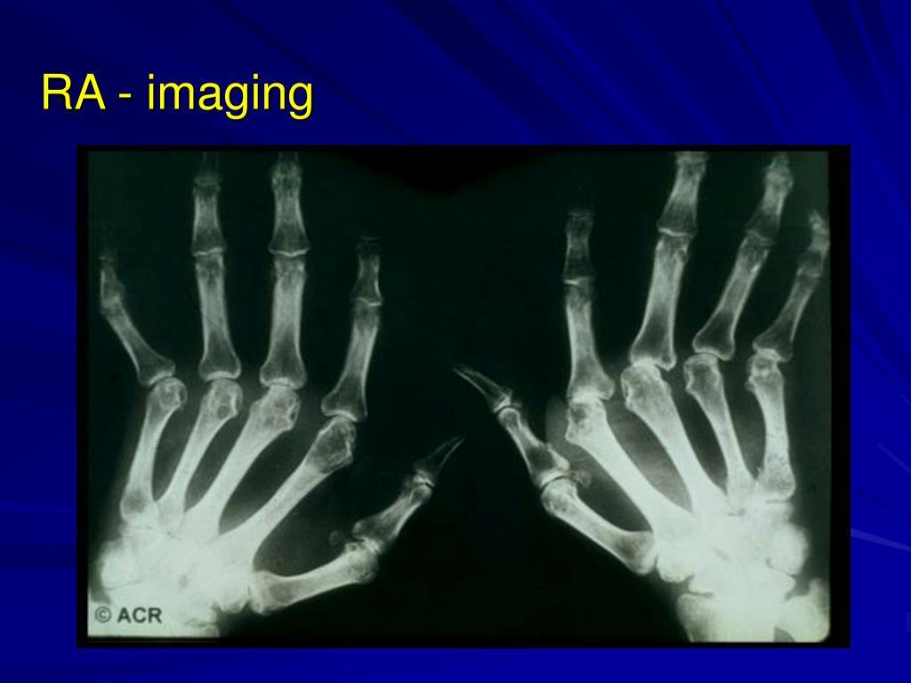 RA - imaging