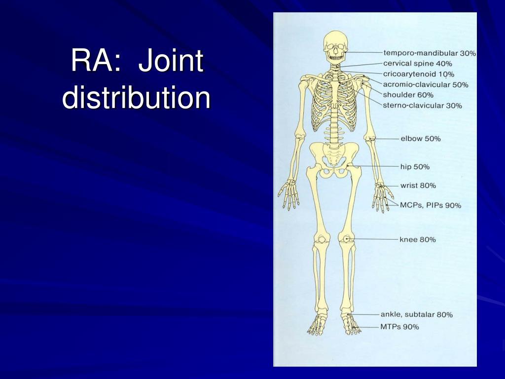 RA:  Joint distribution
