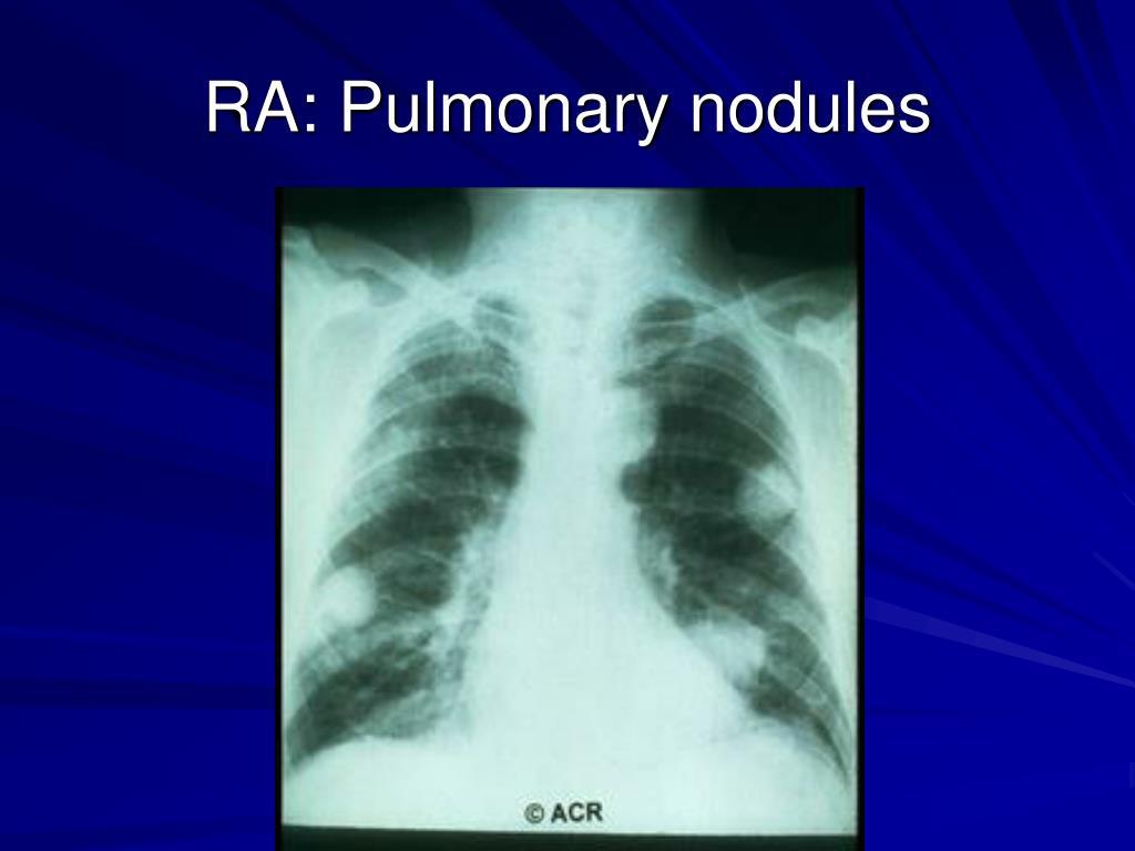 RA: Pulmonary nodules