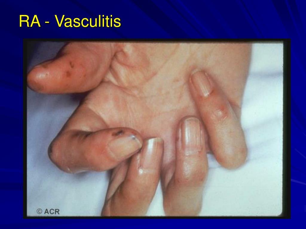 RA - Vasculitis