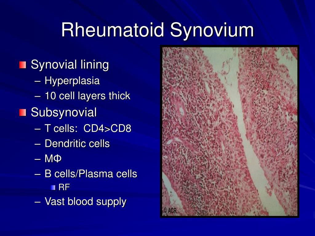 Rheumatoid Synovium