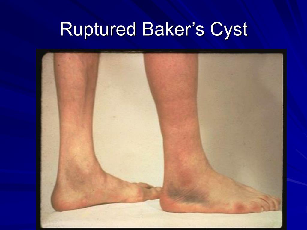 Ruptured Baker's Cyst