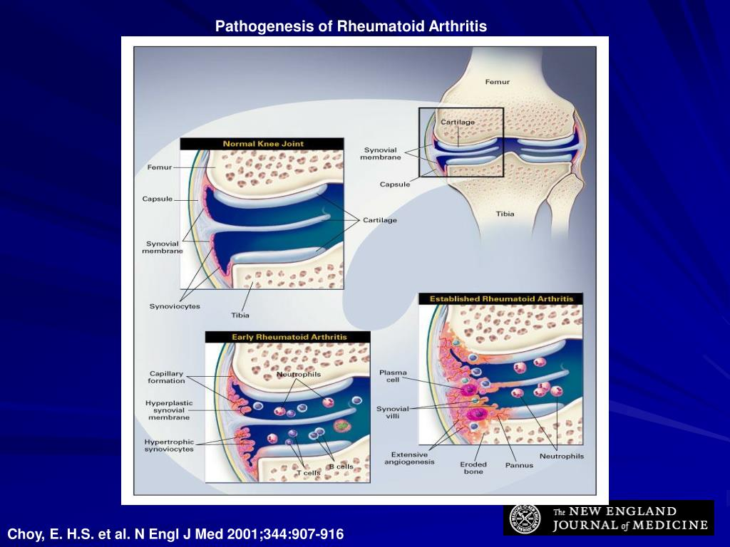 Pathogenesis of Rheumatoid Arthritis
