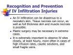 recognition and prevention of iv infiltration injuries