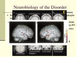 neurobiology of the disorder