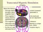 transcranial magnetic stimulation tms3