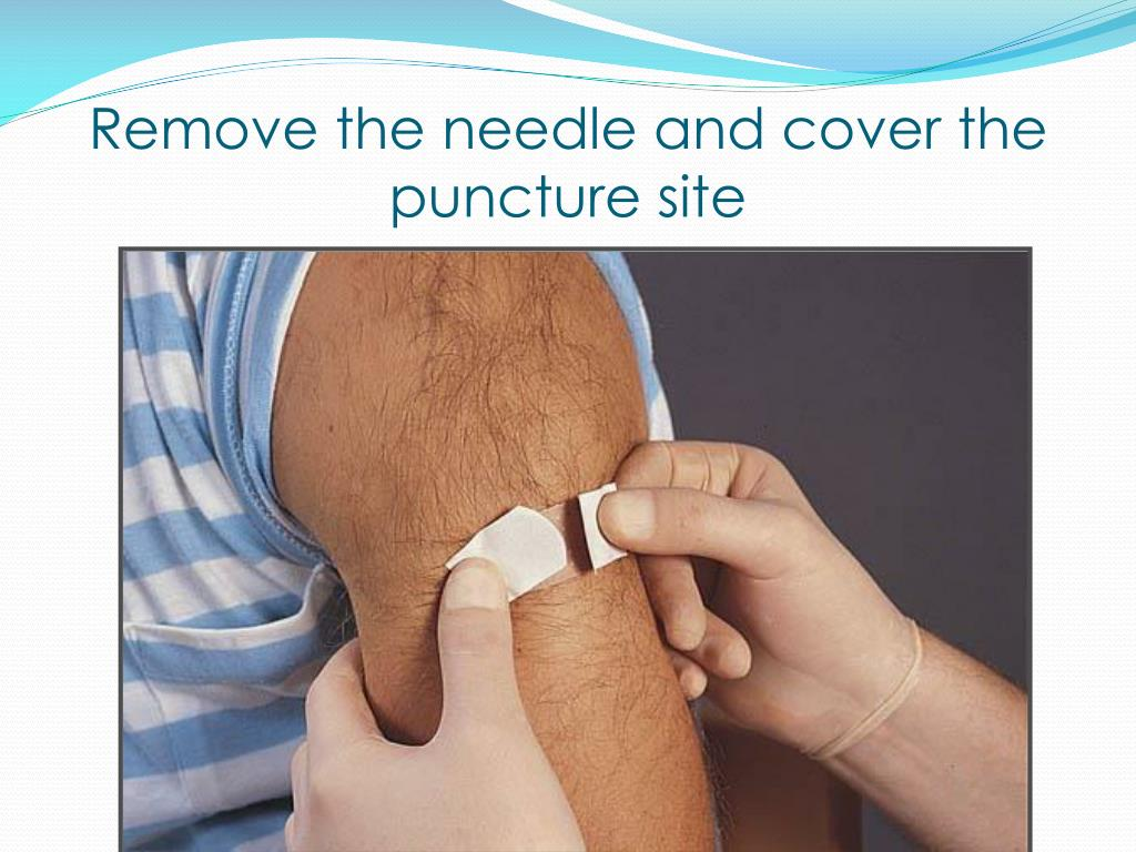 Remove the needle and cover the puncture site