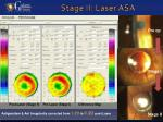 stage ii laser asa